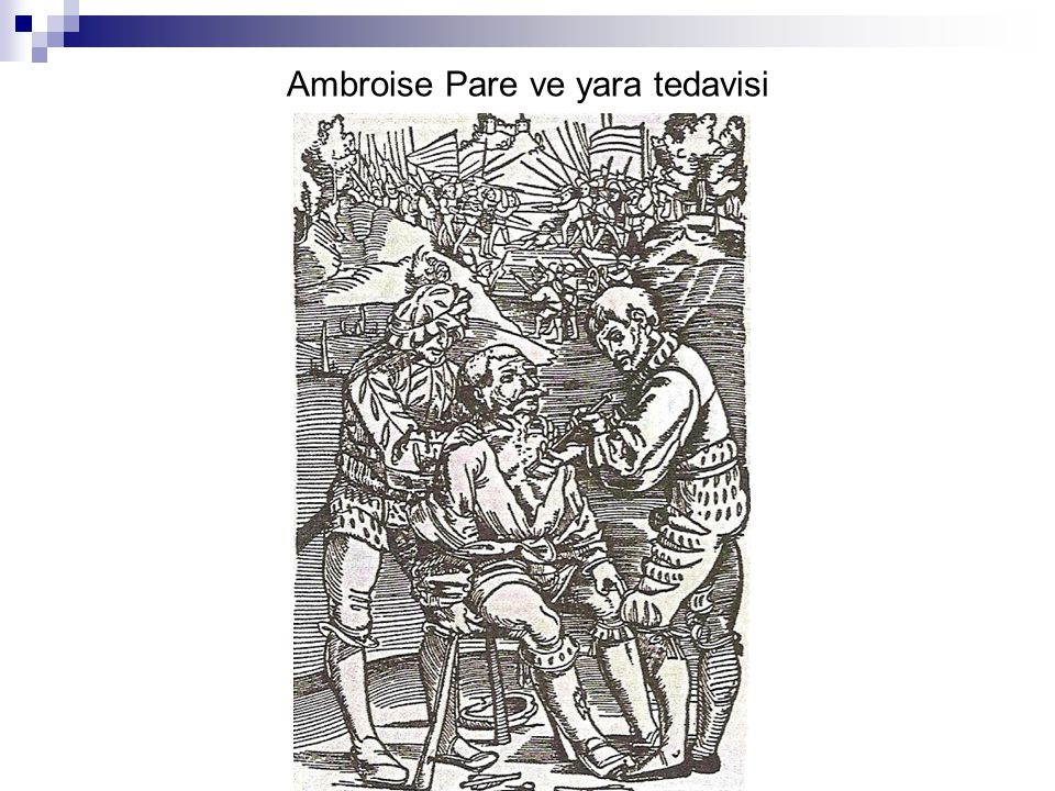 Ambroise Pare ve yara tedavisi
