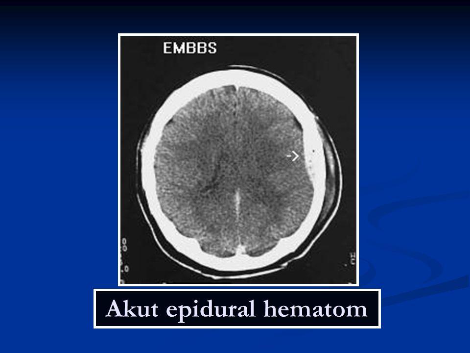 Akut epidural hematom