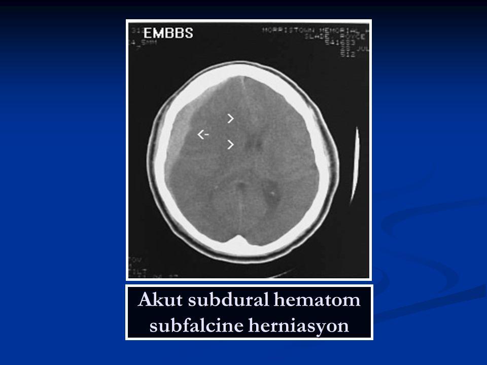 Akut subdural hematom subfalcine herniasyon
