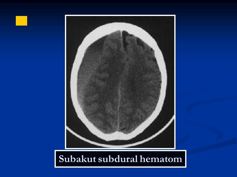 Subakut subdural hematom