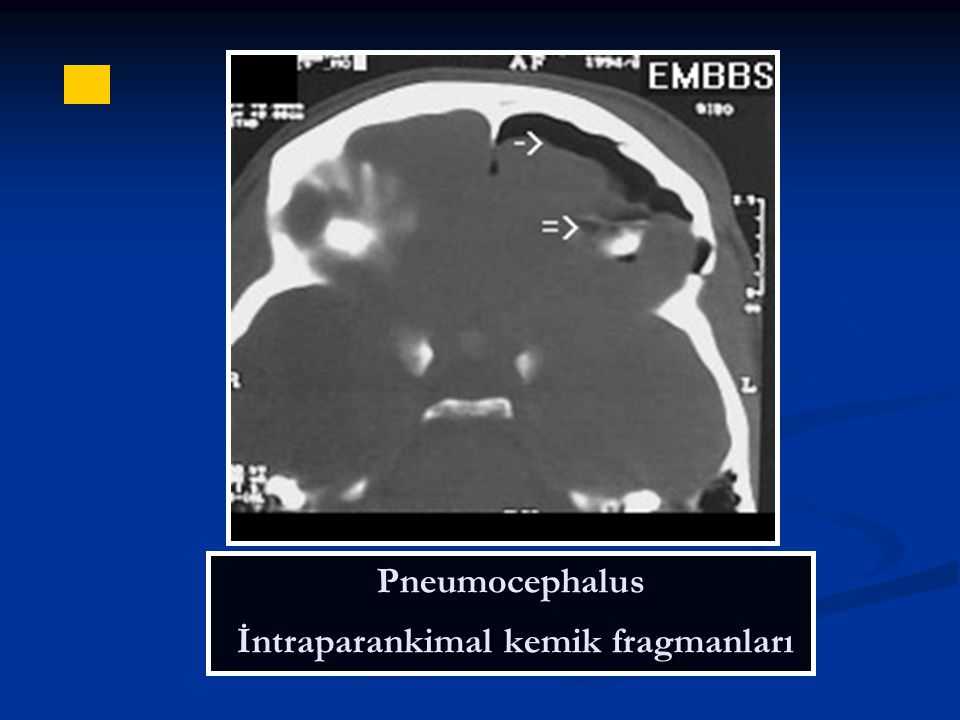Pneumocephalus İntraparankimal kemik fragmanları