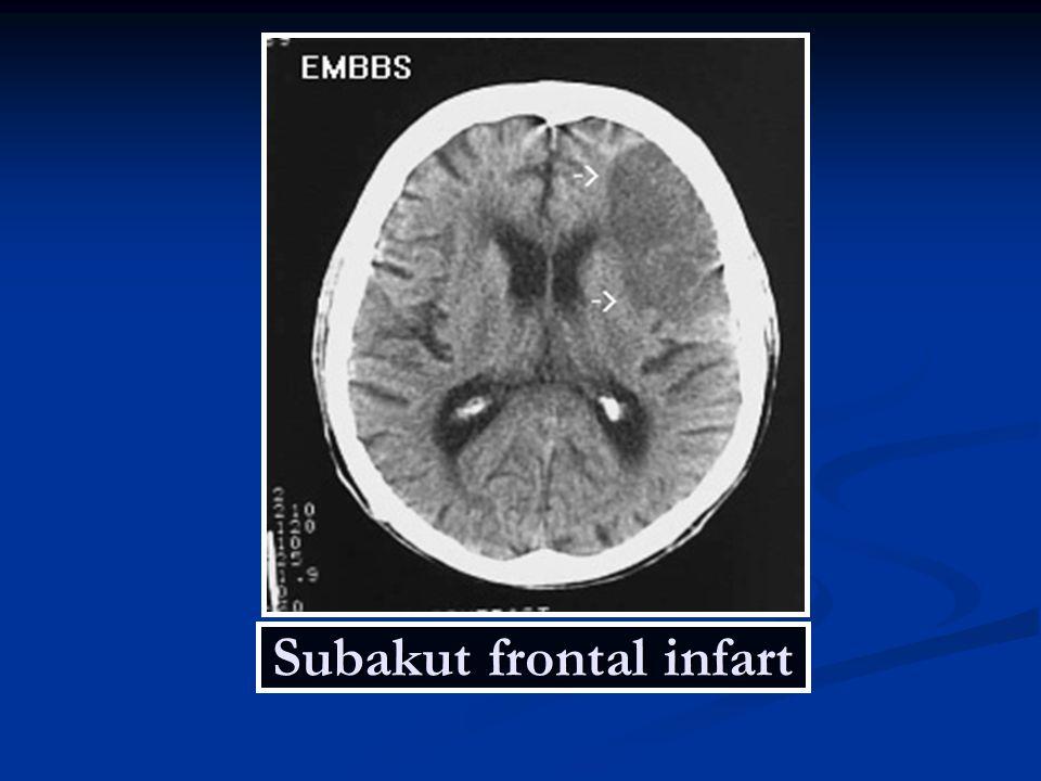 Subakut frontal infart