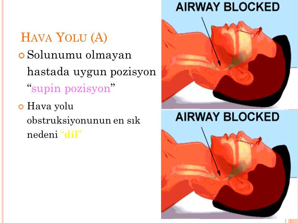 Hava Yolu (A) Solunumu olmayan hastada uygun pozisyon supin pozisyon