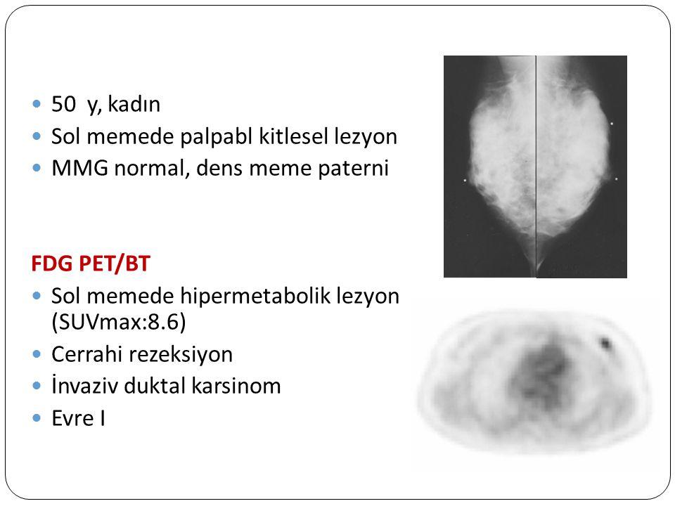 50 y, kadın Sol memede palpabl kitlesel lezyon. MMG normal, dens meme paterni. FDG PET/BT. Sol memede hipermetabolik lezyon (SUVmax:8.6)