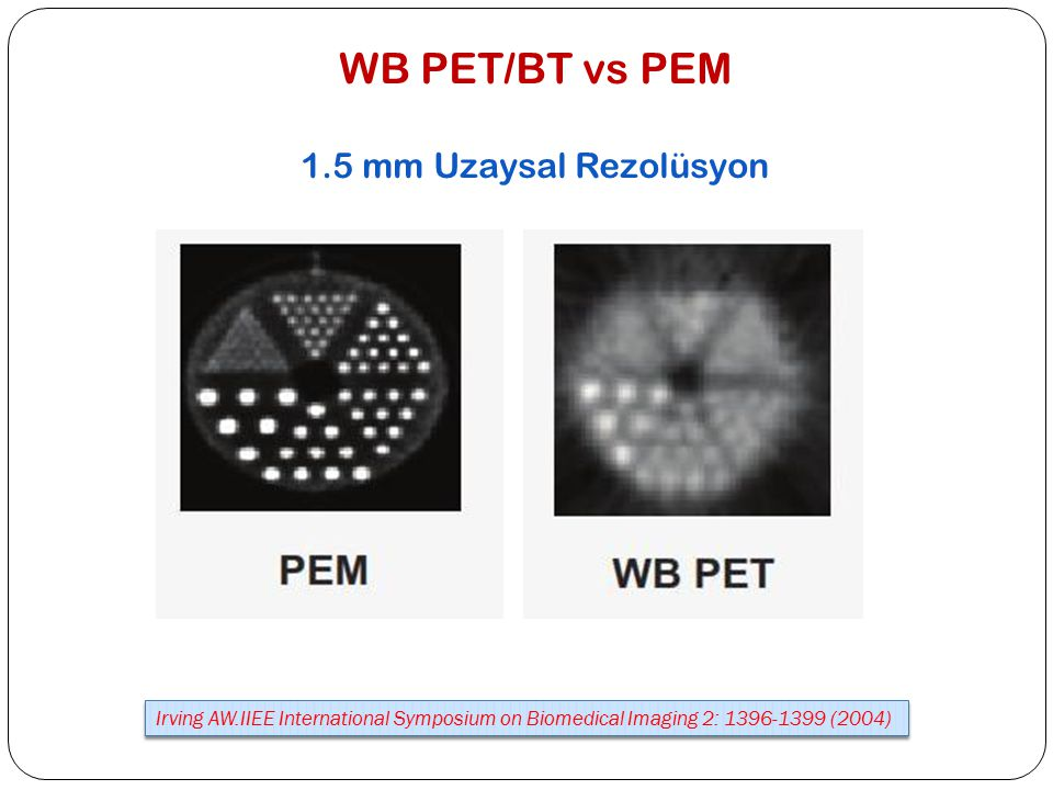 WB PET/BT vs PEM 1.5 mm Uzaysal Rezolüsyon