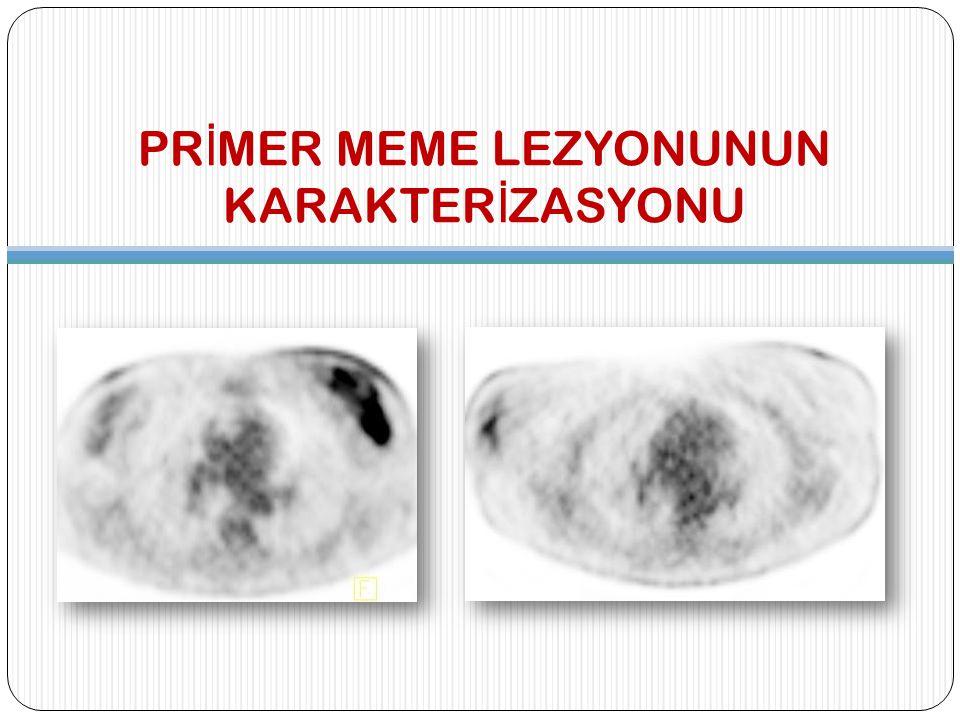 PRİMER MEME LEZYONUNUN KARAKTERİZASYONU