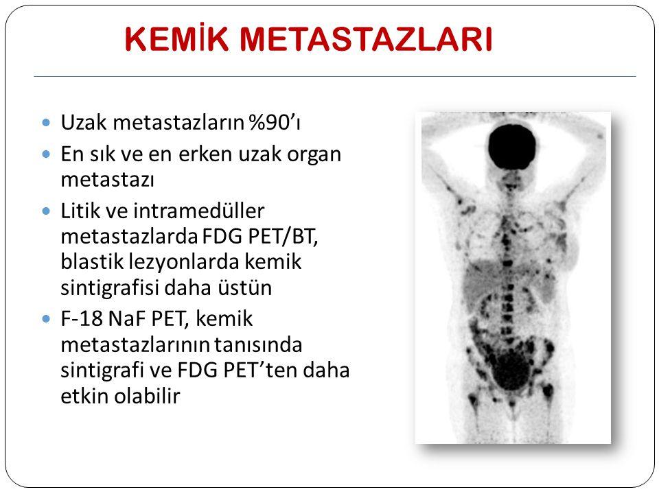 KEMİK METASTAZLARI Uzak metastazların %90'ı