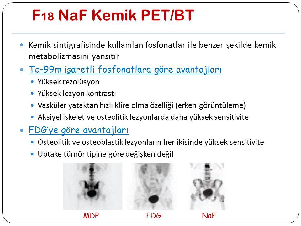 F18 NaF Kemik PET/BT Kemik sintigrafisinde kullanılan fosfonatlar ile benzer şekilde kemik metabolizmasını yansıtır.