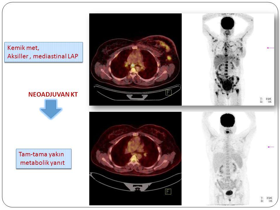 Kemik met, Aksiller , mediastinal LAP NEOADJUVAN KT Tam-tama yakın metabolik yanıt