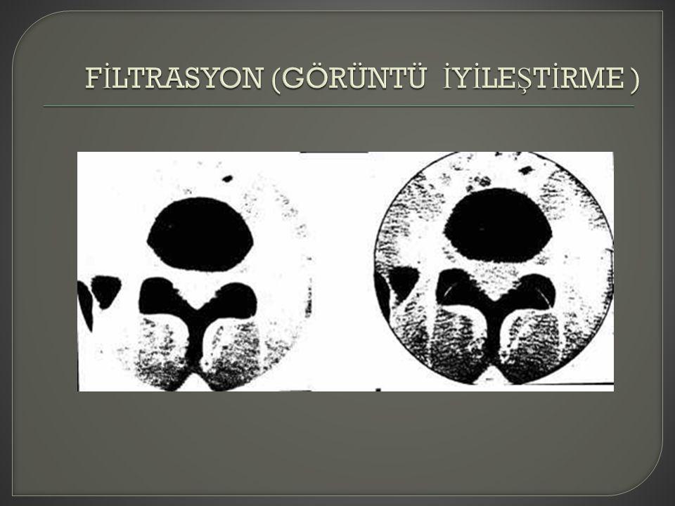 FİLTRASYON (GÖRÜNTÜ İYİLEŞTİRME )
