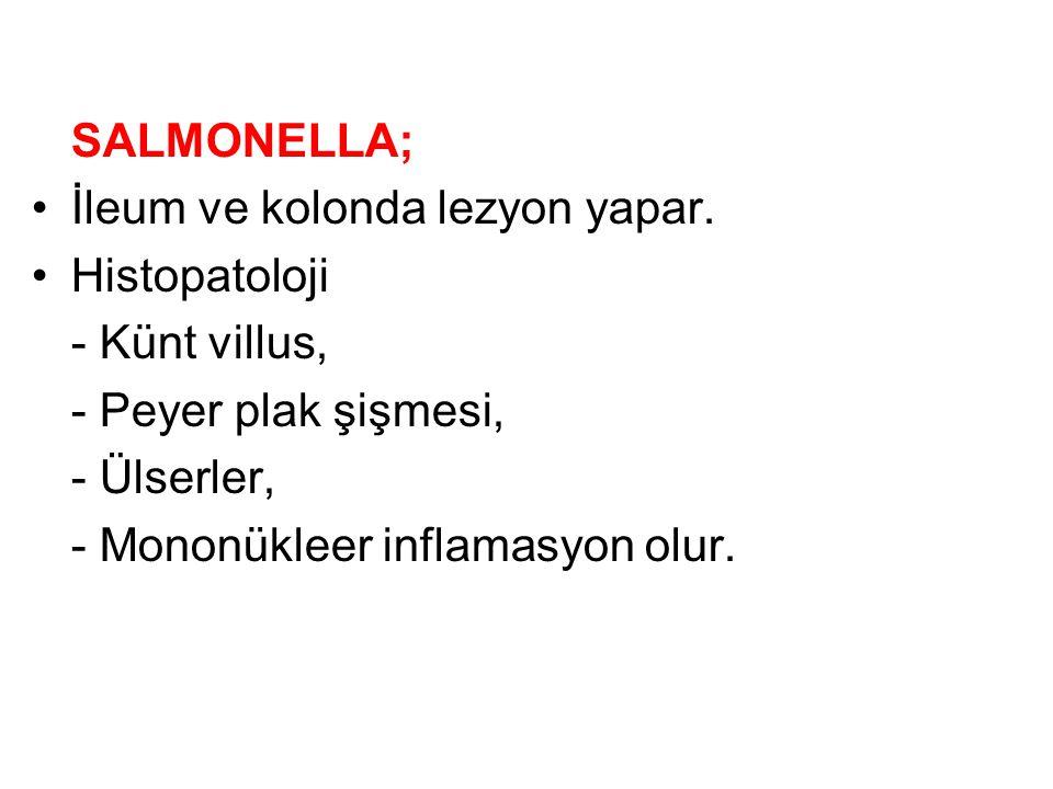 SALMONELLA; İleum ve kolonda lezyon yapar. Histopatoloji. - Künt villus, - Peyer plak şişmesi, - Ülserler,