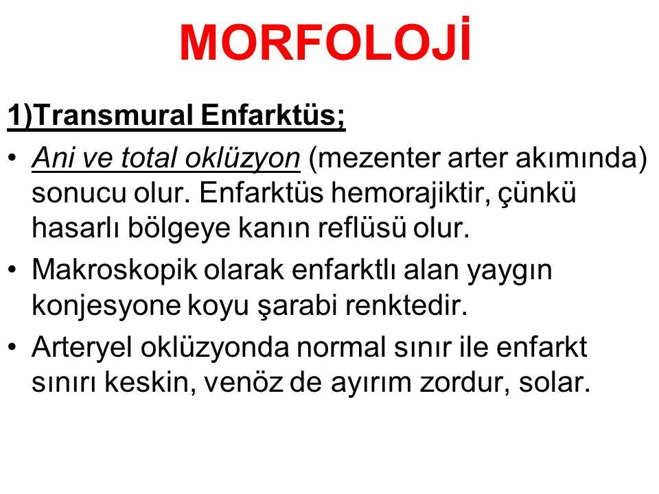 MORFOLOJİ 1)Transmural Enfarktüs;