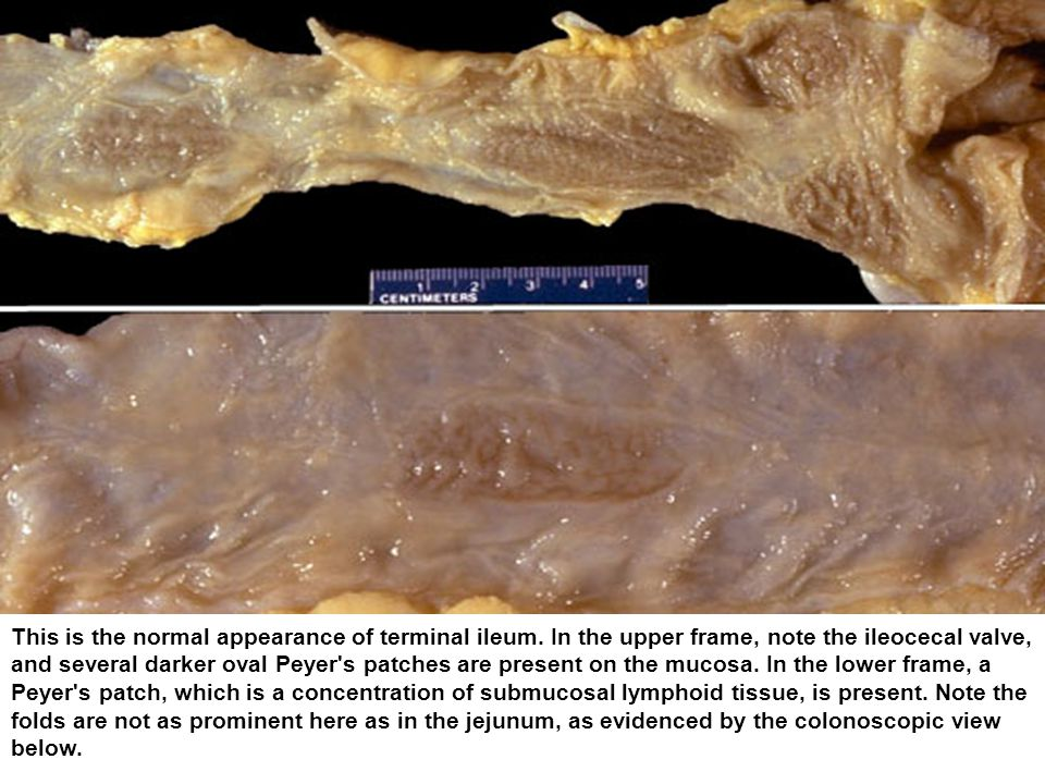 This is the normal appearance of terminal ileum