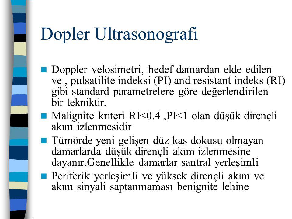 Dopler Ultrasonografi