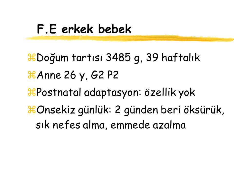 F.E erkek bebek Doğum tartısı 3485 g, 39 haftalık Anne 26 y, G2 P2