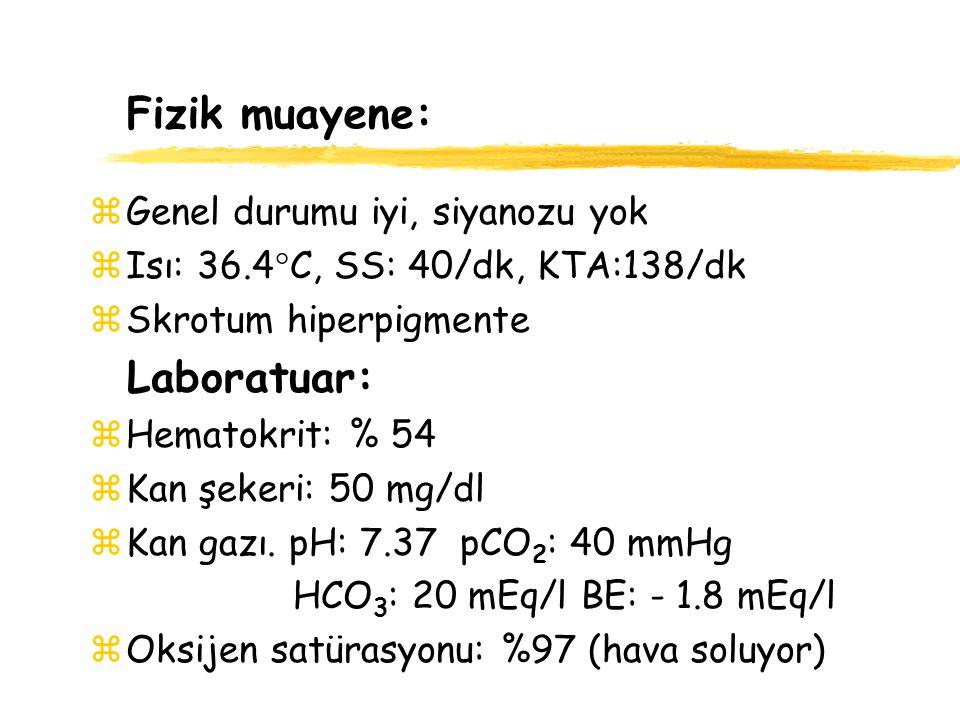 Fizik muayene: Laboratuar: Genel durumu iyi, siyanozu yok