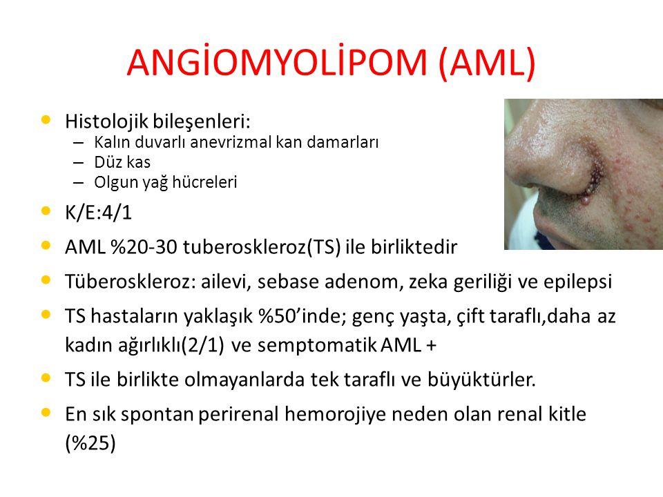 ANGİOMYOLİPOM (AML) Histolojik bileşenleri: K/E:4/1