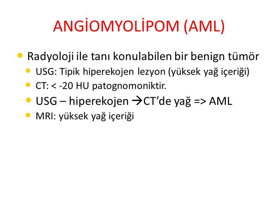 ANGİOMYOLİPOM (AML) Radyoloji ile tanı konulabilen bir benign tümör