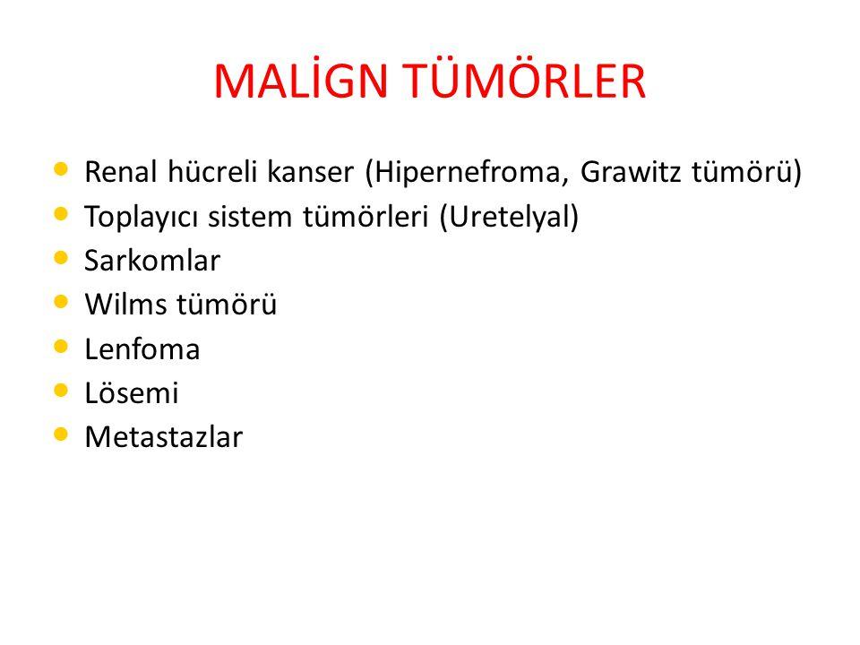MALİGN TÜMÖRLER Renal hücreli kanser (Hipernefroma, Grawitz tümörü)