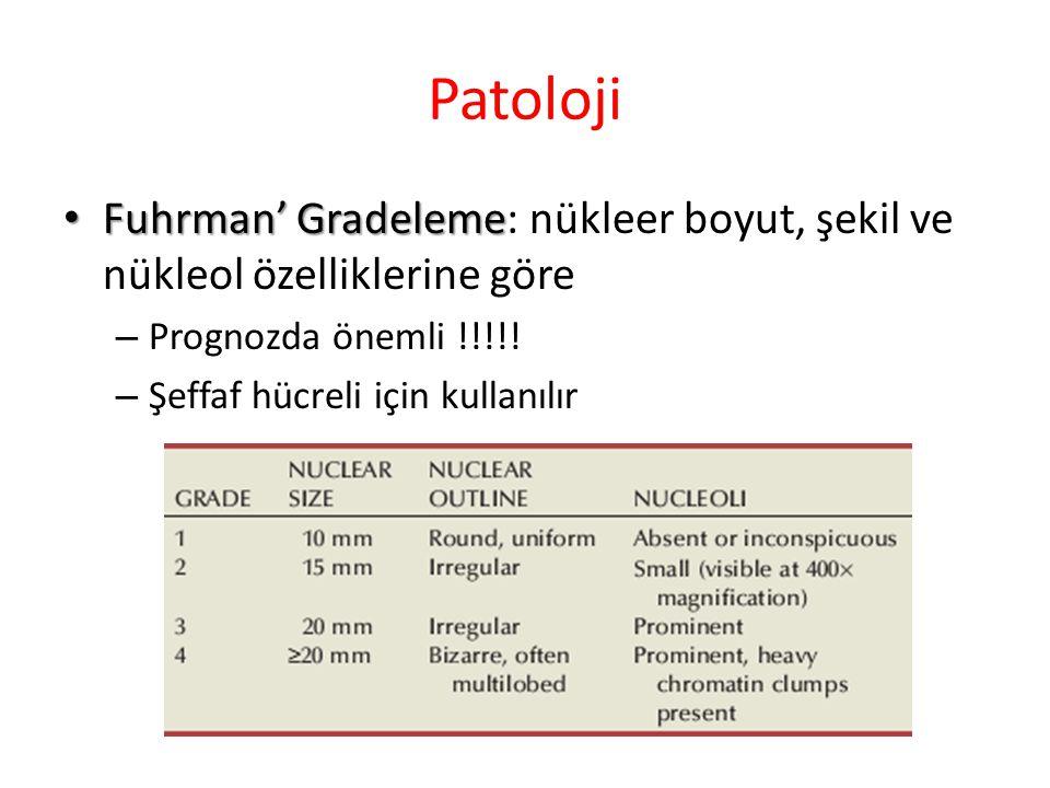 Patoloji Fuhrman' Gradeleme: nükleer boyut, şekil ve nükleol özelliklerine göre. Prognozda önemli !!!!!