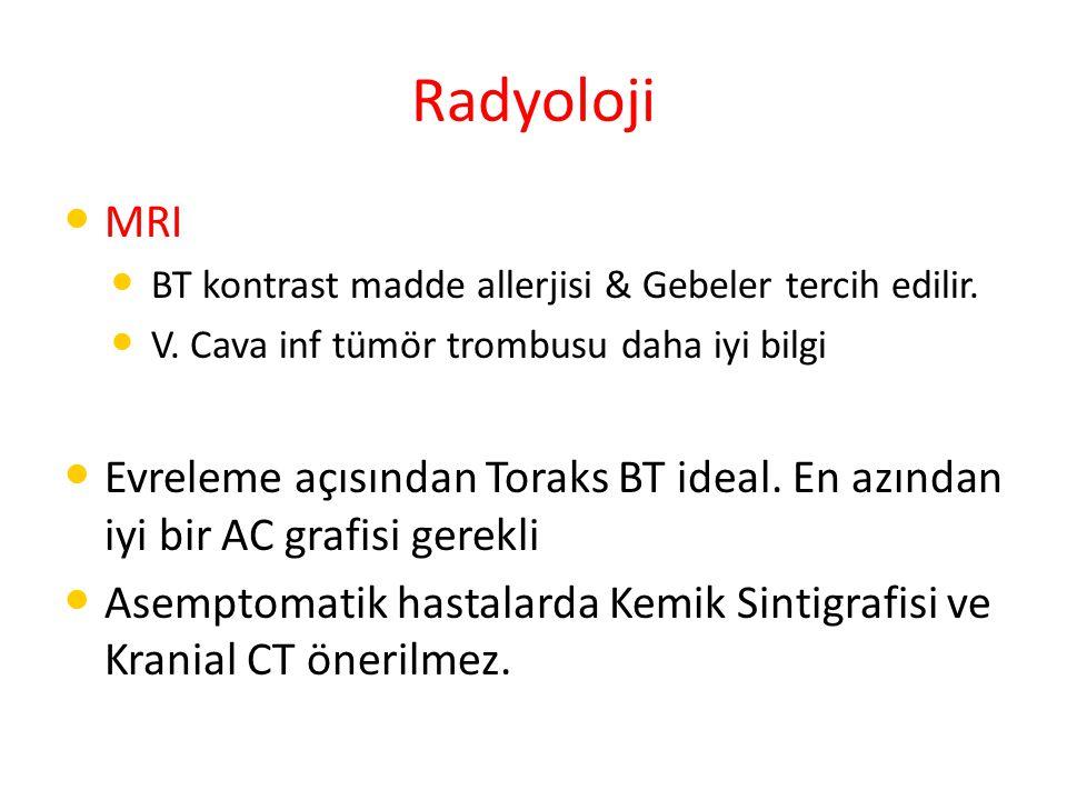 Radyoloji MRI. BT kontrast madde allerjisi & Gebeler tercih edilir. V. Cava inf tümör trombusu daha iyi bilgi.
