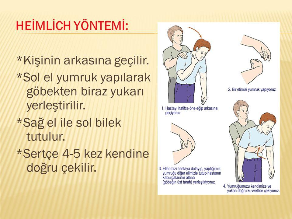 HEİMLİCH YÖNTEMİ: *Kişinin arkasına geçilir. *Sol el yumruk yapılarak göbekten biraz yukarı yerleştirilir.