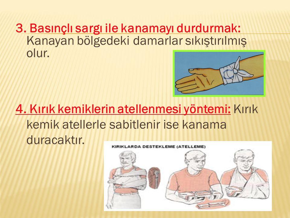 3. Basınçlı sargı ile kanamayı durdurmak: Kanayan bölgedeki damarlar sıkıştırılmış olur.