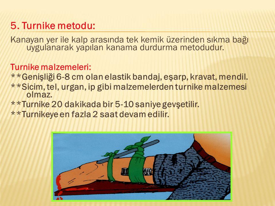 5. Turnike metodu: Kanayan yer ile kalp arasında tek kemik üzerinden sıkma bağı uygulanarak yapılan kanama durdurma metodudur.