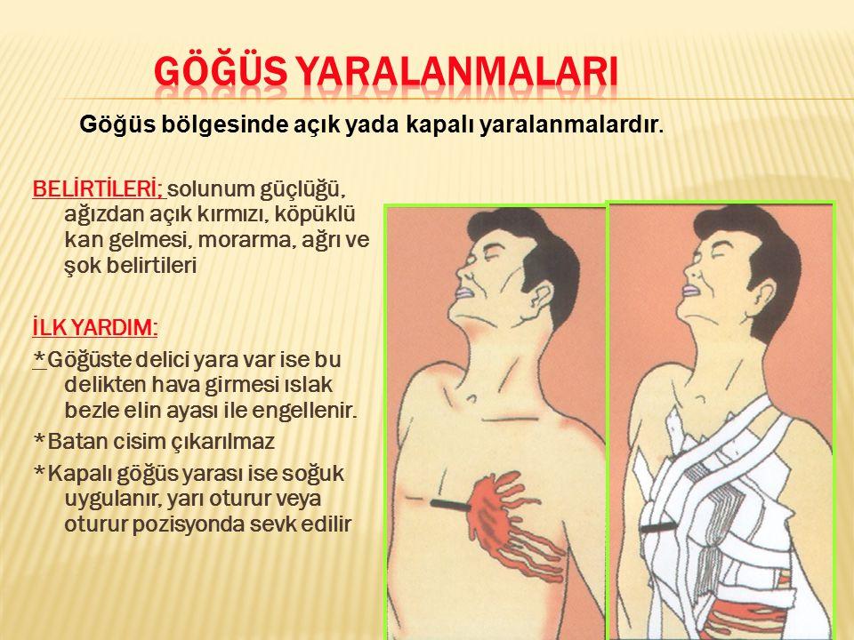GÖĞÜS YARALANMALARI Göğüs bölgesinde açık yada kapalı yaralanmalardır.