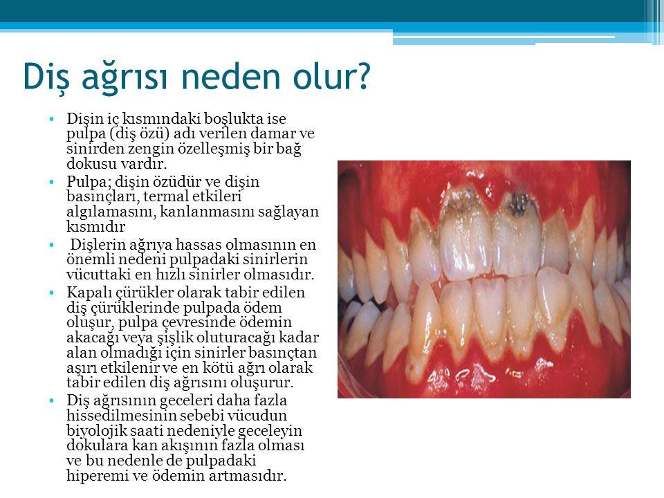 Diş ağrısı neden olur Dişin iç kısmındaki boşlukta ise pulpa (diş özü) adı verilen damar ve sinirden zengin özelleşmiş bir bağ dokusu vardır.