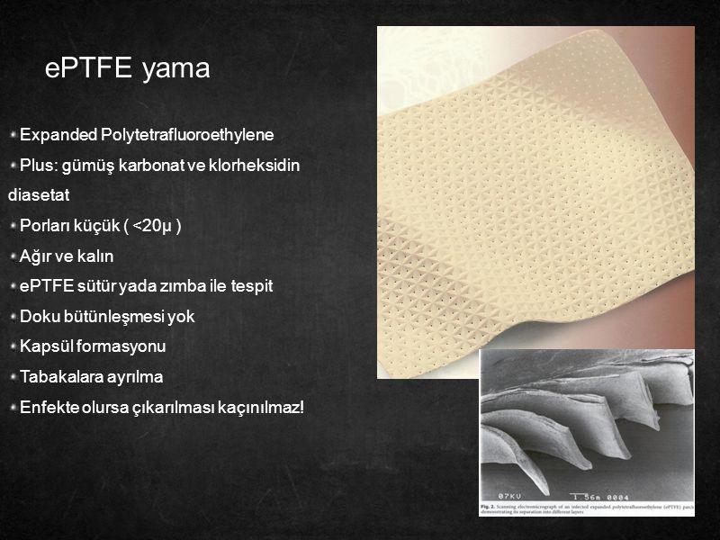 ePTFE yama Expanded Polytetrafluoroethylene
