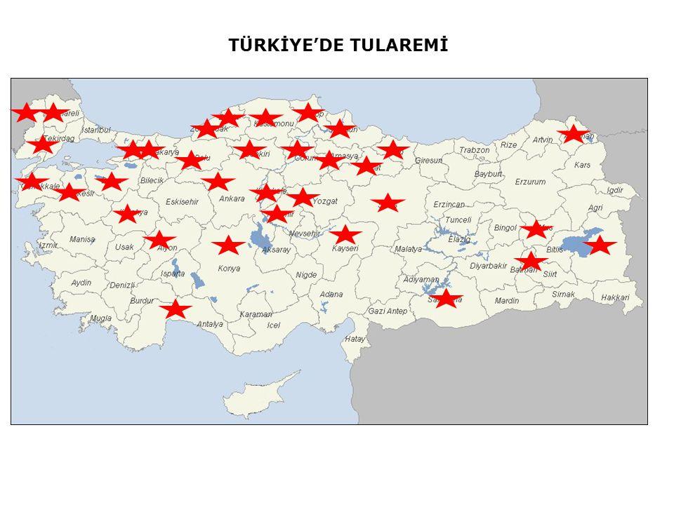 TÜRKİYE'DE TULAREMİ