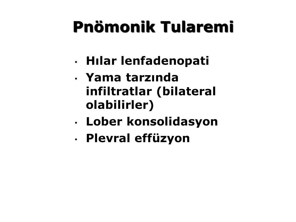 Pnömonik Tularemi Hılar lenfadenopati