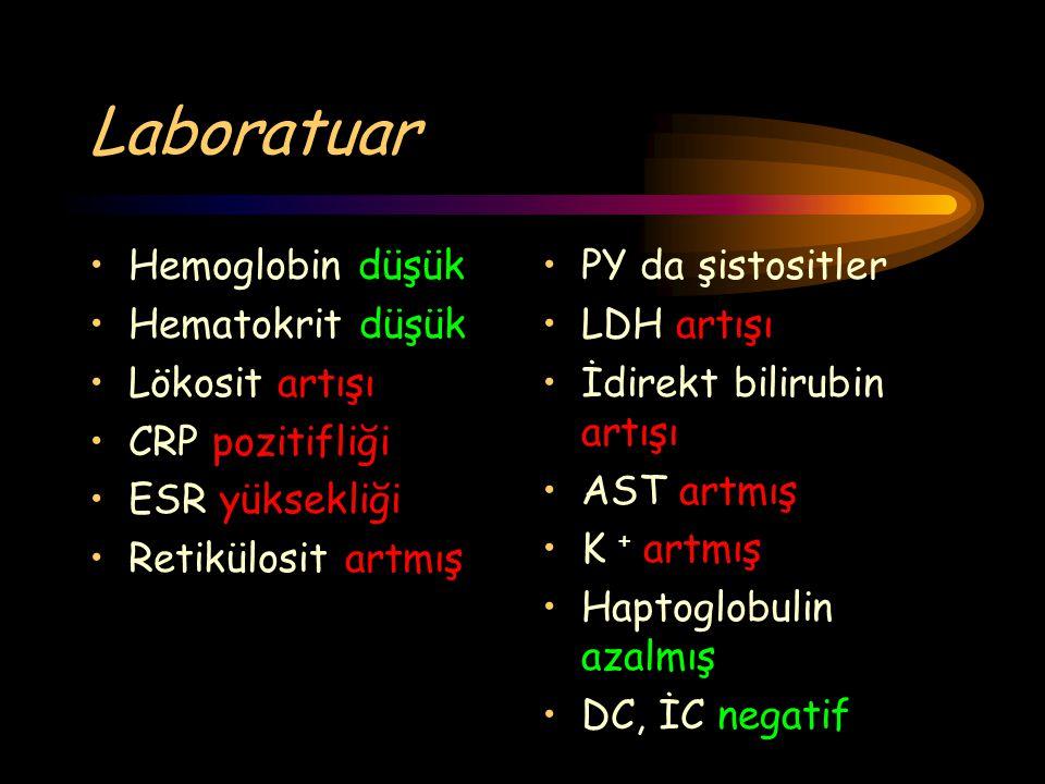 Laboratuar Hemoglobin düşük Hematokrit düşük Lökosit artışı