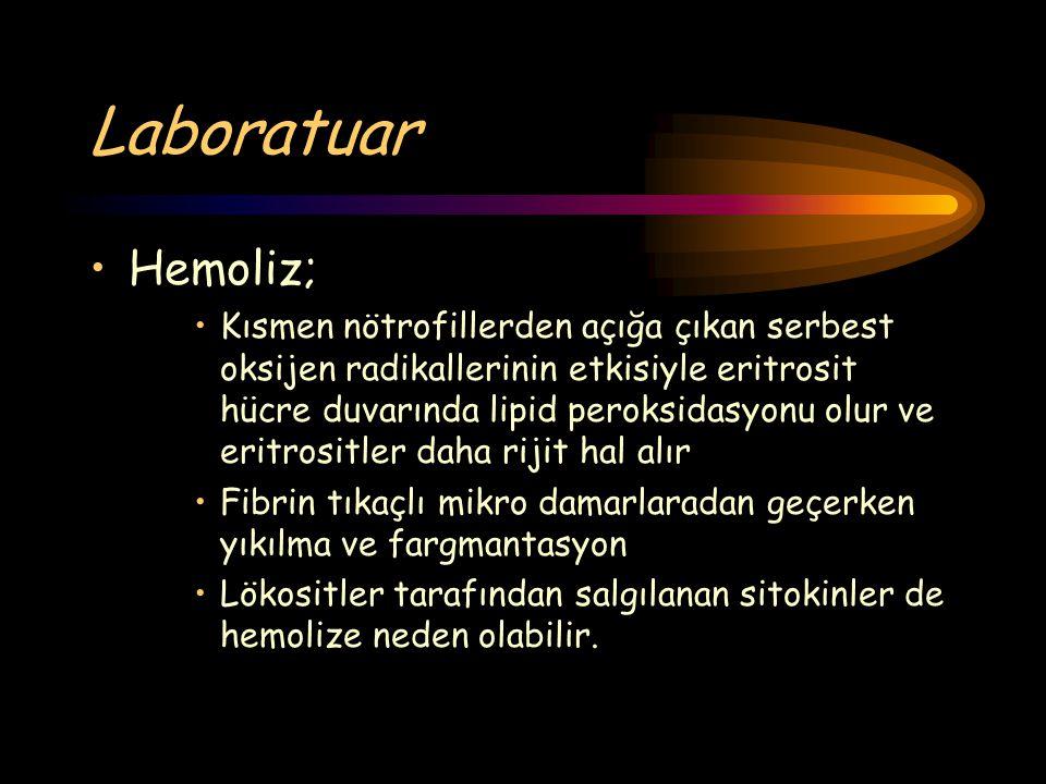 Laboratuar Hemoliz;