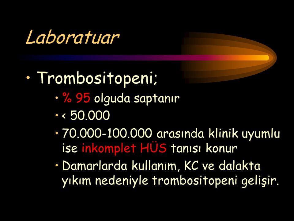 Laboratuar Trombositopeni; % 95 olguda saptanır < 50.000