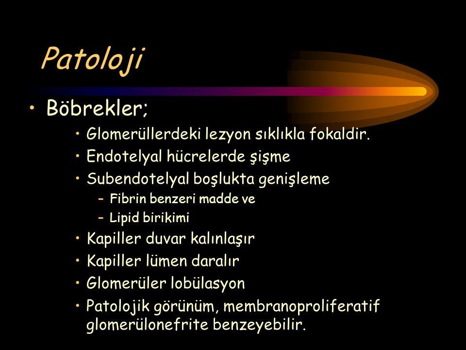 Patoloji Böbrekler; Glomerüllerdeki lezyon sıklıkla fokaldir.