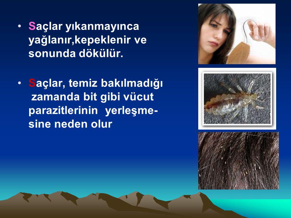 Saçlar yıkanmayınca yağlanır,kepeklenir ve sonunda dökülür.