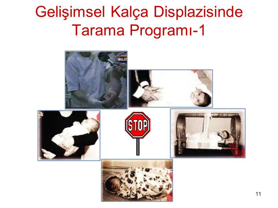 Gelişimsel Kalça Displazisinde Tarama Programı-1
