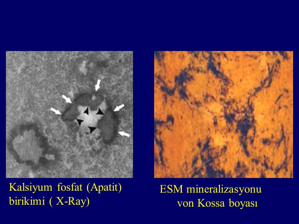 Kalsiyum fosfat (Apatit) birikimi ( X-Ray) ESM mineralizasyonu
