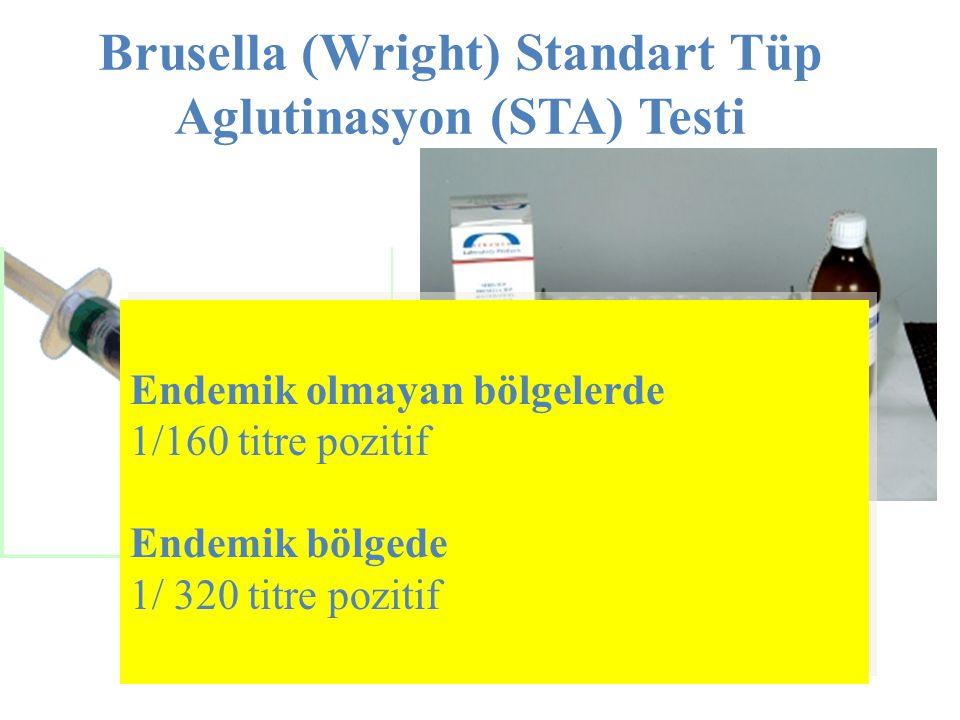 Brusella (Wright) Standart Tüp Aglutinasyon (STA) Testi
