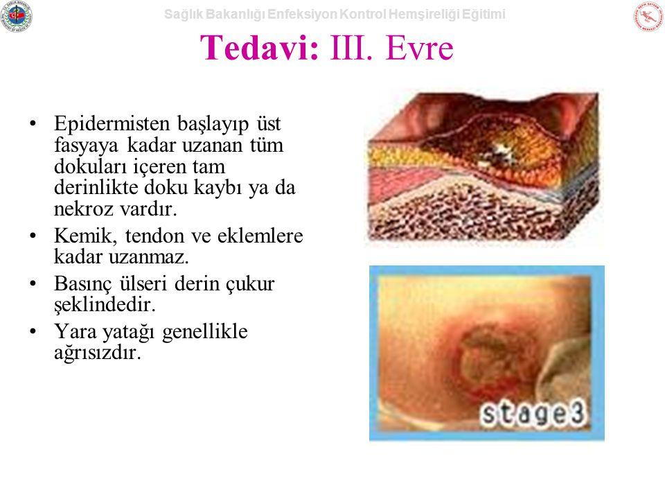 Tedavi: III. Evre Epidermisten başlayıp üst fasyaya kadar uzanan tüm dokuları içeren tam derinlikte doku kaybı ya da nekroz vardır.