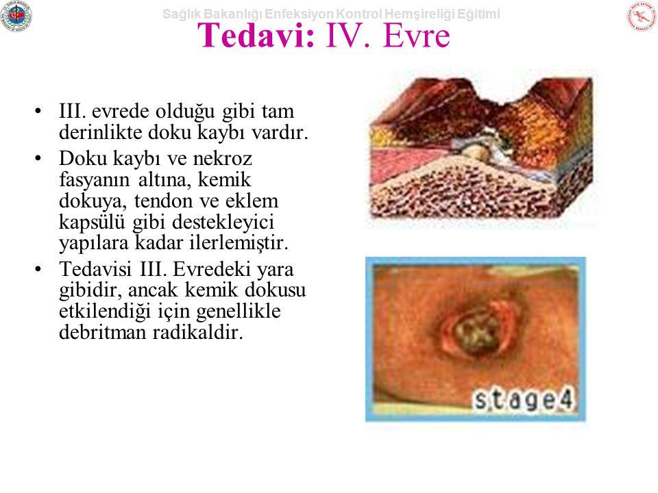 Tedavi: IV. Evre III. evrede olduğu gibi tam derinlikte doku kaybı vardır.