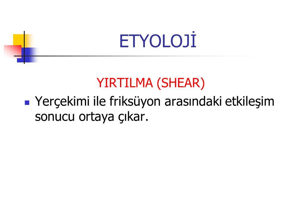 ETYOLOJİ YIRTILMA (SHEAR)