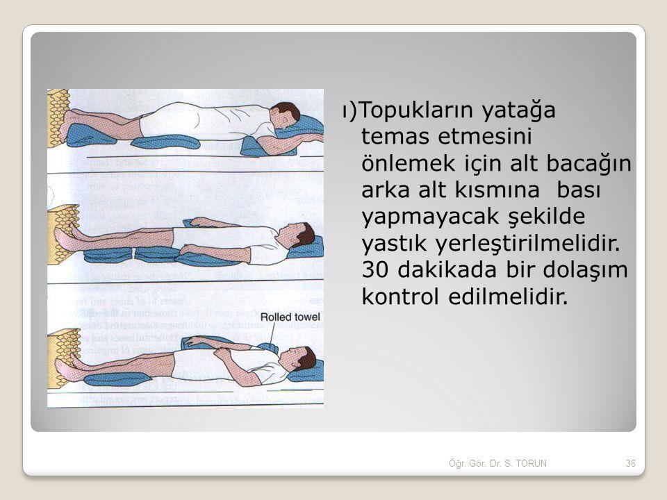 ı)Topukların yatağa temas etmesini önlemek için alt bacağın arka alt kısmına bası yapmayacak şekilde yastık yerleştirilmelidir. 30 dakikada bir dolaşım kontrol edilmelidir.