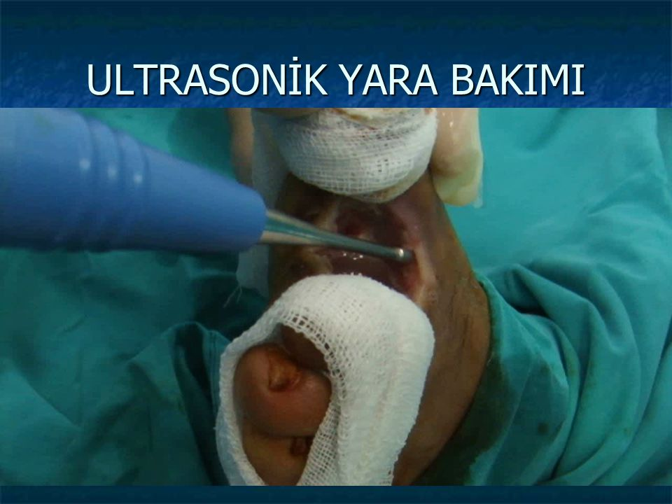 ULTRASONİK YARA BAKIMI