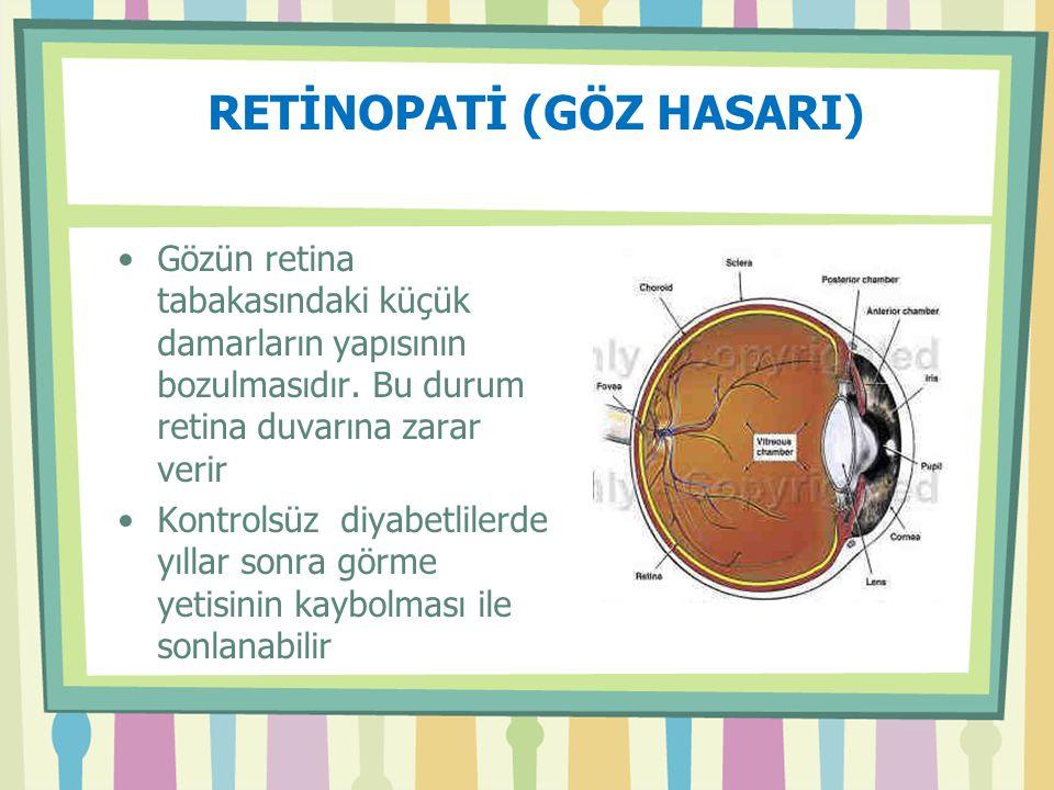 RETİNOPATİ (GÖZ HASARI)