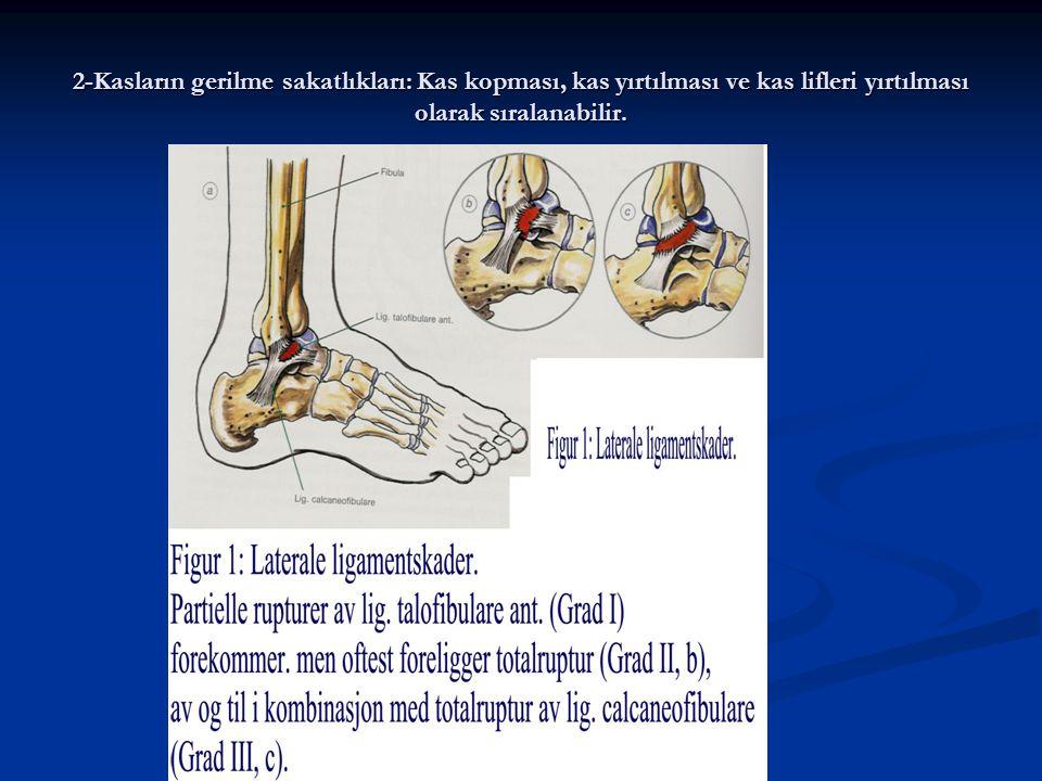 2-Kasların gerilme sakatlıkları: Kas kopması, kas yırtılması ve kas lifleri yırtılması olarak sıralanabilir.