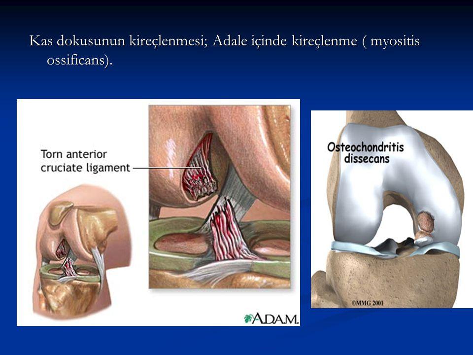 Kas dokusunun kireçlenmesi; Adale içinde kireçlenme ( myositis ossificans).