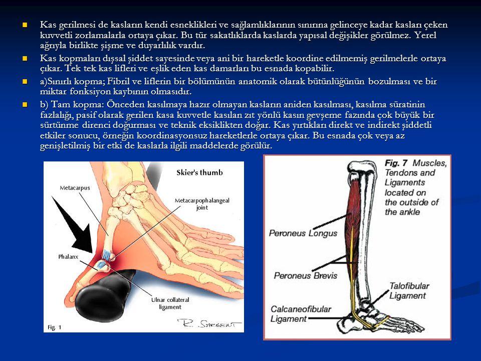 Kas gerilmesi de kasların kendi esneklikleri ve sağlamlıklarının sınırına gelinceye kadar kasları çeken kuvvetli zorlamalarla ortaya çıkar. Bu tür sakatlıklarda kaslarda yapısal değişikler görülmez. Yerel ağrıyla birlikte şişme ve duyarlılık vardır.